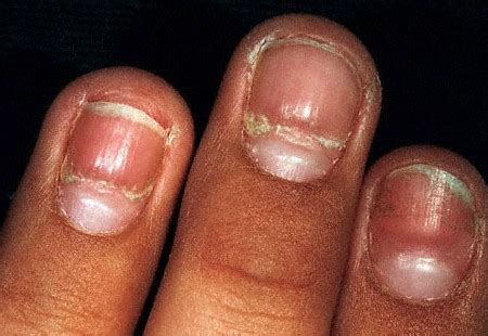 Common Nail Problems Pictures common nail problems and remedies