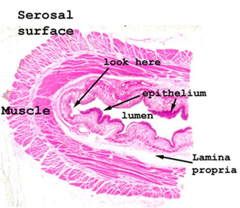 Cross Section Of Esophagus by Slide 19 1