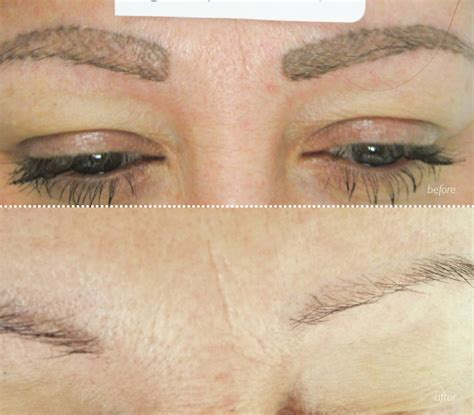 remove eyebrow tattoo nclp client exle images northern cosmetic laser