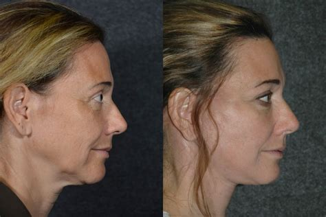 50 year old women before and after facelift surgery s lift on 50 year old woman facelift