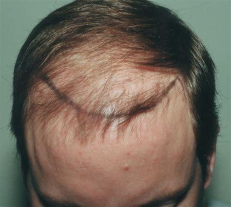 faq main hair loss hair transplant and restoration hair transplant nyc dr thomas law hair restoration