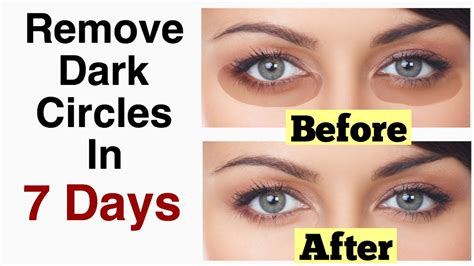 How Eye Circles Appear by How To Remove Eye Circles In 7 Days 100