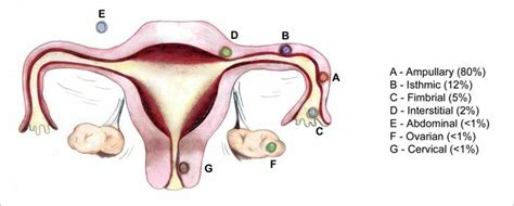 no period after c section and tubal a review of ectopic pregnancy medchrome