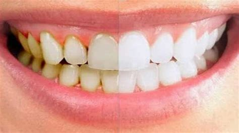 removing plaque from s teeth home remedy in removing dental plaque