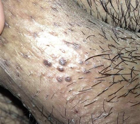 Black Dots Of Ingrown Hairs On Back Of Thighs | black dots of ingrown hairs on back of thighs ingrown hair