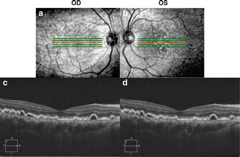 fundus changes fundus changes in type iii membranoproliferative
