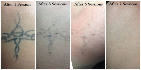 tattoo removal pictures after one session pics videos vancouver tattoo removal