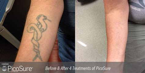 dermatology tattoo removal laser removal before and after photos cosmetic
