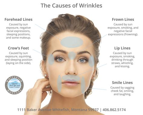 Laptops The New Cause Of Skin Aging by The Causes Of Wrinkles Glacier Med Spa In Whitefish