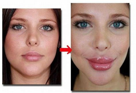 Lip Plumbing by Best Lip Plumper Filler Enlargement Enlarger Derma
