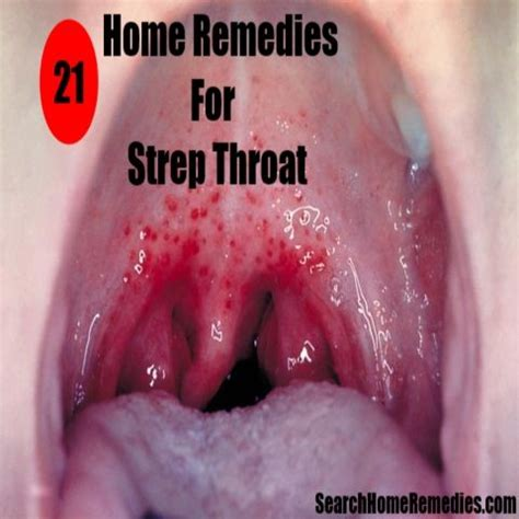 home remedies for strep throat home remedies