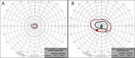 Major Area Field Test Mba by Expansion Of Severely Constricted Visual Field Using
