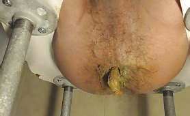 Wide Yellow Shit Dirtyshack Free Scat Tube Videos