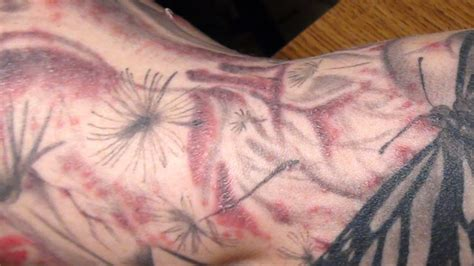 tattoo infection scab a trail of ink tracking a rare tattoo related infection