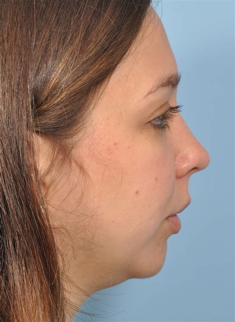 what should i expect when getting a chin length short wavy bob facial implants pictures facesit sex