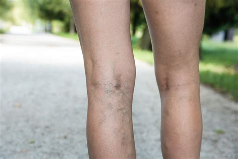 tattoo over varicose veins can you varicose veins