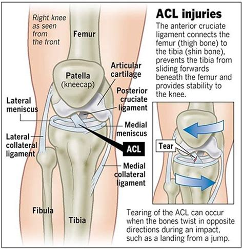 anterior cruciate ligament acl a patient s guide to anterior cruciate ligament injuries