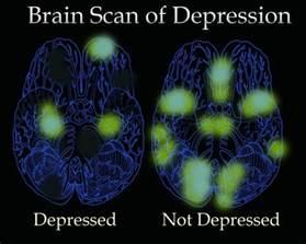 Color Affects Mood depression amp bipolar disorder