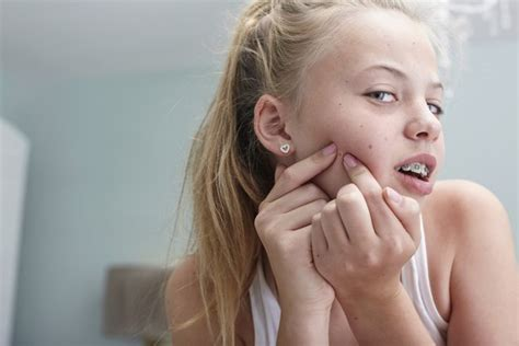 girl face pre acne in pre teens when to consult the dermatologist