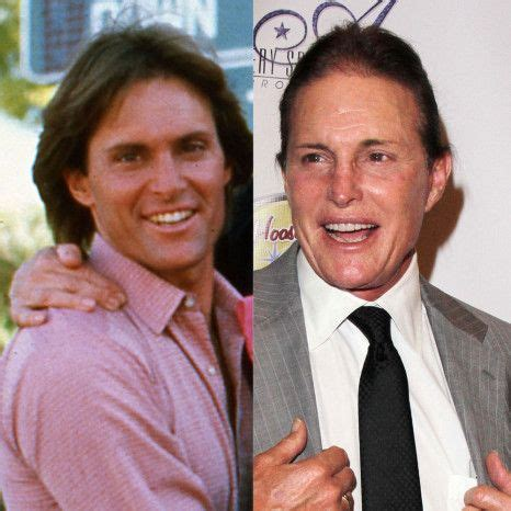 whats happened to bruce jenner 140 best images about celebrity plastic surgery before