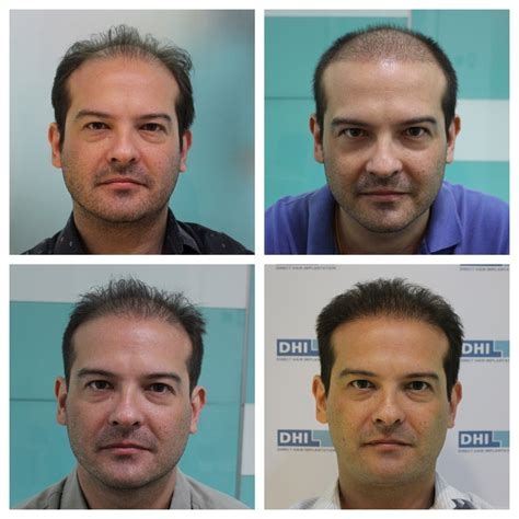 hair transplant cost in the philippines hair transplant in the philppines cost before and after