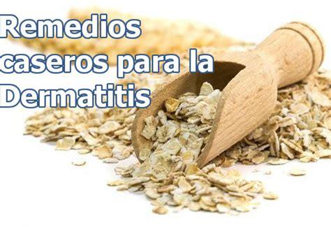 remedios para dermatitis seborreica la ropa para la remedios caseros para la dermatitis