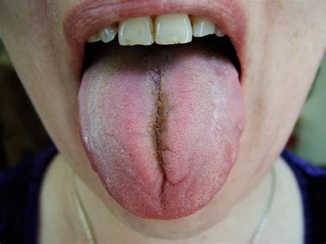 pale tongue swollen white tongue images