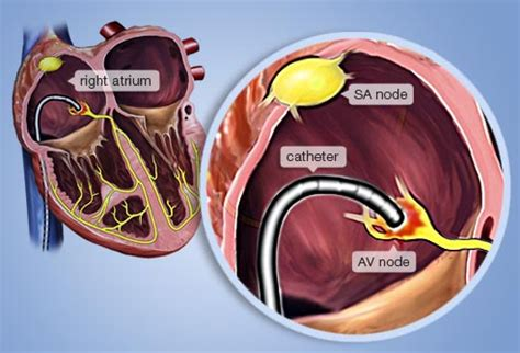 afib ablation side effects slideshow treatment options for atrial fibrillation