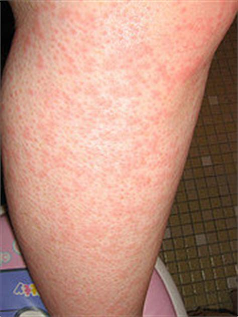 Why Do Itch In The Shower by Itchy Legs Causes And Treatment Healthhype