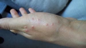 Pustole Sedere by My Scabies Story Archives Scabies Treatments
