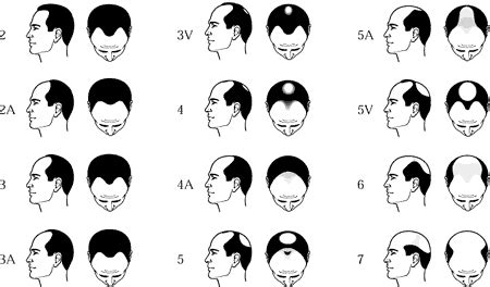 Type 2 Hair Loss by