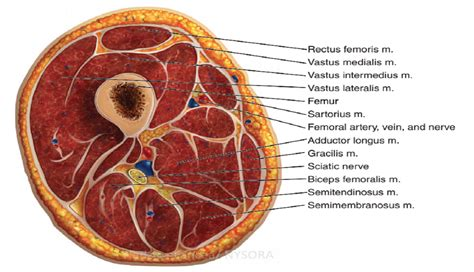 nerve cross section acute compartment syndrome of the limb implications for