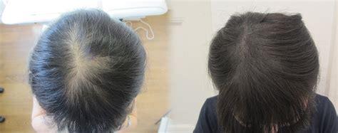 Pictures Of Womens Scalp Hair | scalp micropigmentation for women hair loss hair