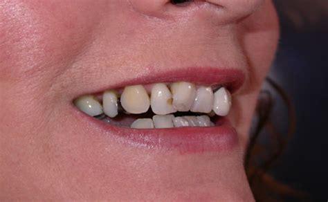ocean dental truro cornwall