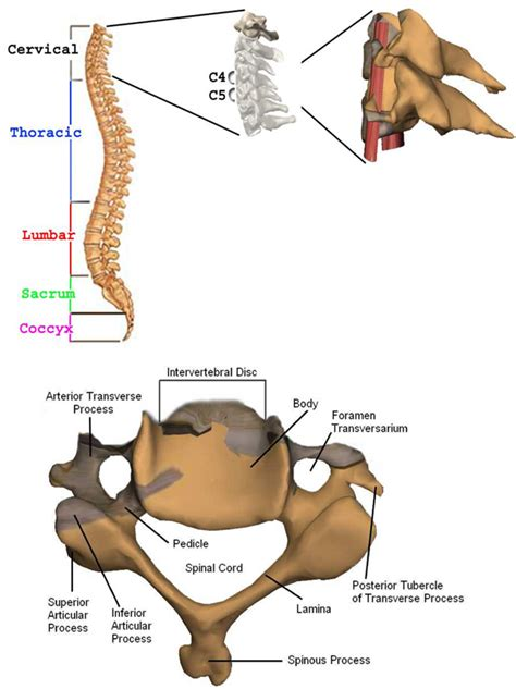 spine c4 c5 diagram top spine anatomy cervical discs real patient s c4 c5
