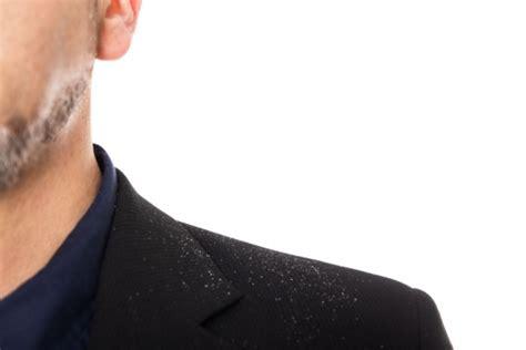 alimentazione per dermatite seborroica dermatite seborroica eurosalus