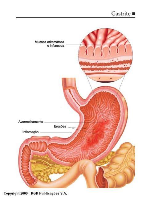 alimentazione gastrite cronica gastrite