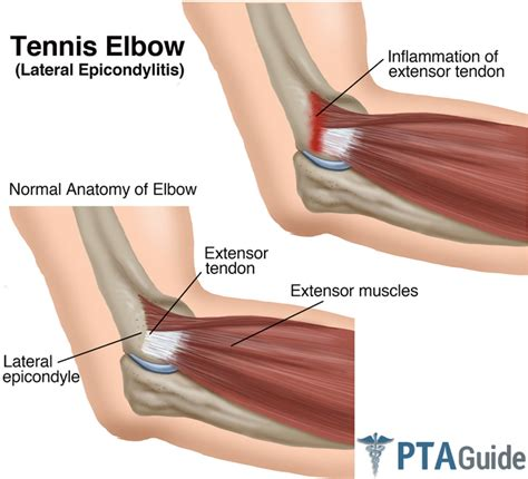 best treatment for tennis treatment of tennis exercises all the best