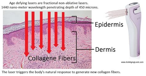 how well does tria age defying laser work on deep acne scars tria age defying laser vs tripollar stop