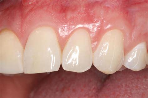 Or Gum Dentist For Gum Disease In Kidron Oh Raber Dental