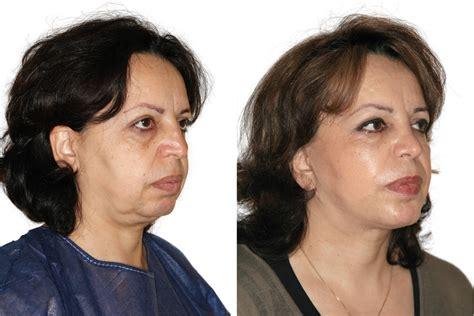 Facelift Vorher Nachher by Vorher Nachher Bilder Facelifting Holidays Oo