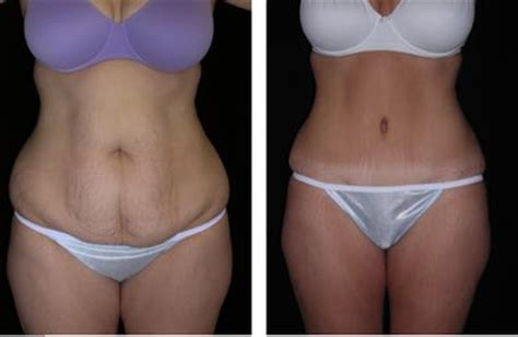 mommy makeover after c section lost weight weights and lost on pinterest