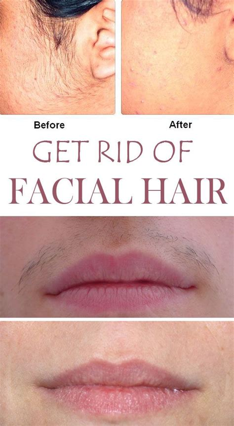 stop womens chin hair growth 1000 ideas about facial hair on pinterest natural
