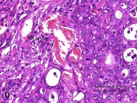 Mba Neutrophil by Pathology Outlines Medullary Carcinoma