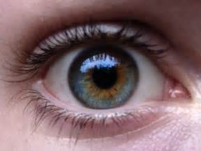 blue green eye color what i learned from daniel the central heterochromia