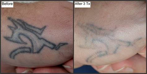 tattoo removal after 3 treatments before and after photos millefiori