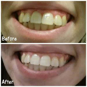pro light dental whitening system reviews perfect your smile with luster premium white review and