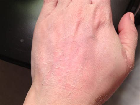 tca peel on hands results youtube