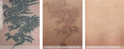 tattoo removal before and after healing tattoo collection best laser tattoo removal with picosure philadelphia