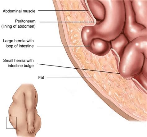 hernia diagram hernia symptoms california hernia specialists